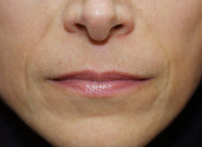 Lip Fillers Leeds - before