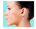 Silhouette Soft Non Surgial Thread Facelift