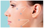 Silhouette Soft Non Surgical Thread Facelift